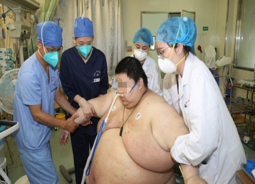 Pria Cina Ini Berat Badannya Naik 100 Kg