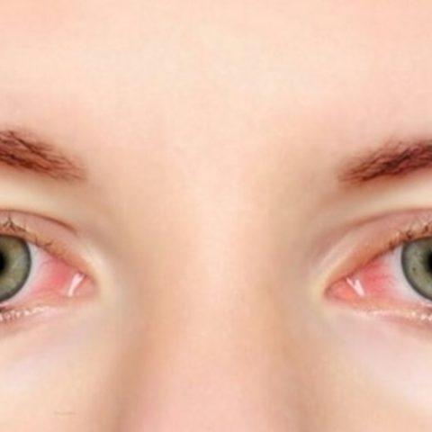 Kenali 5 Gejala Penyakit Glaukoma